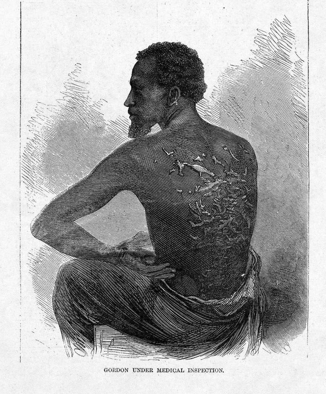 This image shows the scars resulting from severe lashings. This enslaved man was able to escape his master and get across union lines during the civil war. This image is discussed in Kathleen Collins, The Scourged Back, History of Photography, vol. 9 (1985), pp. 43-45; and Louis P. Masur,  'Pictures have now become a necessity', the use of images in American history textbooks, The Journal of American History, vol. 84 (1998), pp. 1416-1419. Harper's Weekly: A Journal of Civilization was an American political magazine based in New York City and published by Harper & Brothers from 1857 until 1916. It featured foreign and domestic news, fiction, essays on many subjects and humor, alongside illustrations. It covered the American Civil War extensively, including many illustrations of events from the war.