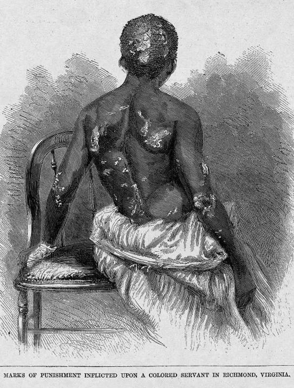 """This illustration shows the back of woman with burn marks. The victim was thirteen years old when, for reasons unexplained in the article, she annoyed or upset her mistress. She was locked in a room by herself for over a week, during which time the mistress repeatedly burned her back. The mistress was arrested, but released on $ 5,000 bail. The original photograph is located in the Houghton Library at Harvard University (Wendell Phillips Papers, [bMSAm1953(942)]. In a letter from Richmond, dated July 6, 1866, which enclosed this photo, John Oliver wrote Wendell Philllips that """"although the photograph is a very poor one. . . from it you will be able to see quite well the barbarism of Slavry [sic] as it now exist[s] in King William Co, Virginia in 1866. This girl with a twin Sister and their morthe [sic] lucy [sic] Richardson were Slaves to a Mr Henry Abrams, his wife, one of the most cruel tyrent [sic] read of in any age put out the left eye of the mother, and her constent [sic[ habit has been to take the Childr[e]n and burn their backs in the man[n]er which this picture explains, this chil[d] is now 16 years old and when brought to me, at the freedmen's Court was too weak to walk with me 4 square to gete [sic[ something to eate[sic]."""" Harper's Weekly: A Journal of Civilization was an American political magazine based in New York City and published by Harper & Brothers from 1857 until 1916. It featured foreign and domestic news, fiction, essays on many subjects and humor, alongside illustrations. It covered the American Civil War extensively, including many illustrations of events from the war."""